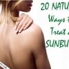 20 meilleurs remèdes maison de coups de soleil - un soulagement instantané de coups de soleil