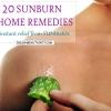 20 Sunburn remèdes maison - un soulagement instantané de coups de soleil