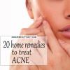 20 Accueil remèdes pour traiter l'acné / boutons naturellement