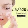 Effacer l'acné sur votre visage avec des remèdes maison