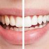 Cruauté Dentifrice gratuit