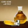 Cure acné naturellement avec des huiles