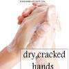 Accueil recours pour les mains sèches et gercées