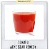 Remèdes naturels pour les cicatrices d'acné