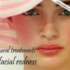 Traitement naturel pour les rougeurs du visage