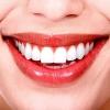 Le bouche-Santé Connection
