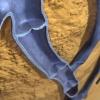 Vidéo: Grossesse et varices