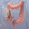 Vidéo: Comprendre IBS
