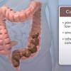 Vidéo: Quelles sont les causes de constipation?